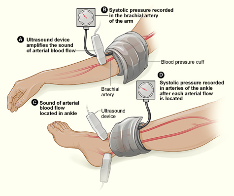 doppler blood pressure machine